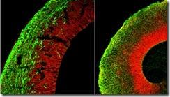 Creación de órganos pequeños a partir de células madre
